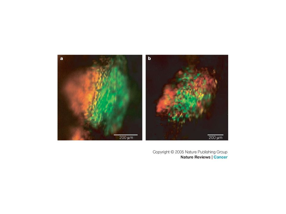 After mixed implantation in severe combined immunodeficient mice green fluorescent protein (GFP)-labelled or red fluorescent protein (RFP)-labelled HT-1080 human fibrosarcoma cells were used to determine the clonality of metastatic colonies.