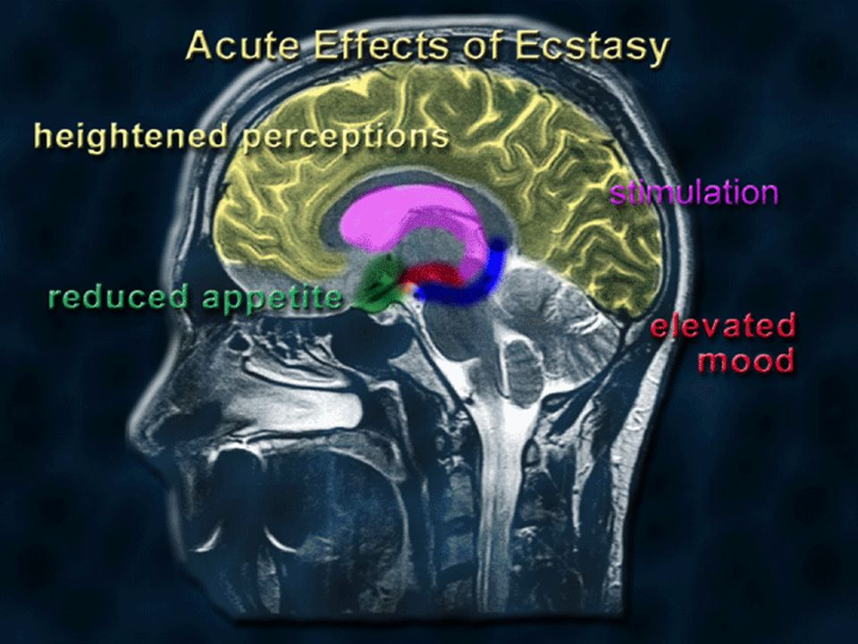 when a person uses Ecstasy, the increase in serotonin in different brain regions (i.e. the areas where serotonin neurons traveling from the raphe nucleus terminate) causes psychological effects. These include, elevated mood and feelings of empathy. The Ecstasy is also reinforcing; this means that its pleasurable properties increase the likelihood that the person will take it again. Drugs that are reinforcing are usually addictive.