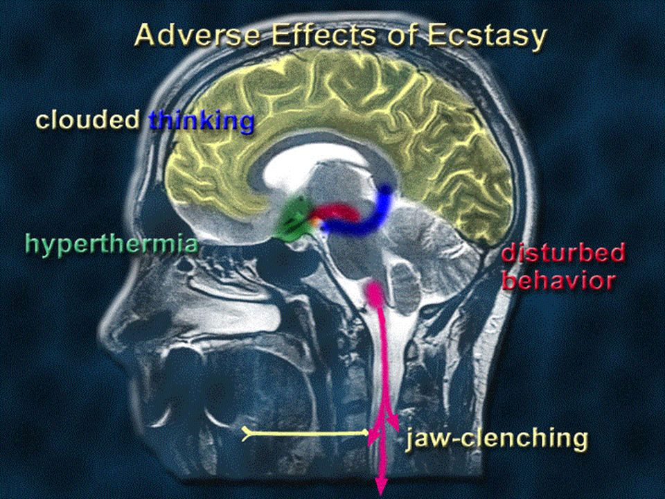 some people who take only one Ecstasy pill may have negative psychological effects such as clouded thinking, agitation and disturbed behavior.