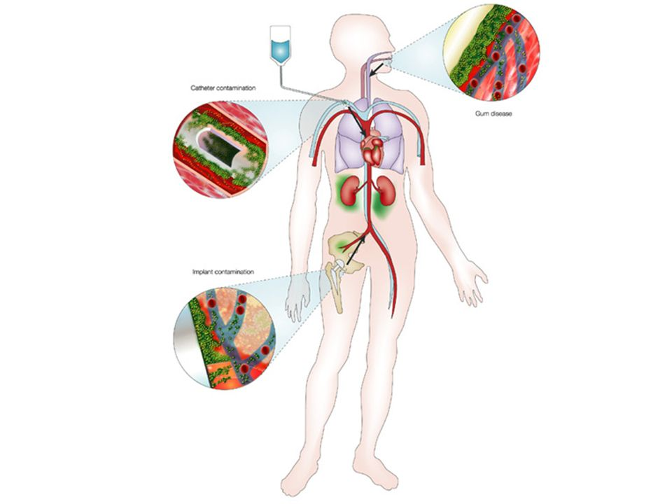 Schematic showing three examples of possible points of entry into the body for infectious biofilms; catheter, hip replacement, and periodontal disease.