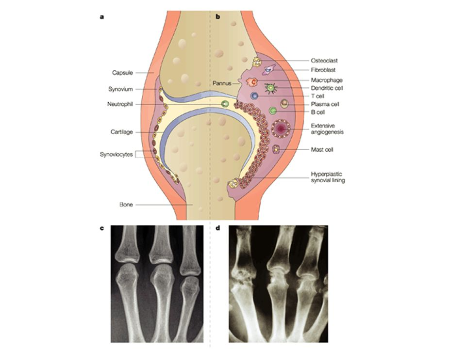 Schematic view of a normal joint and its changes in rheumatoid arthritis.