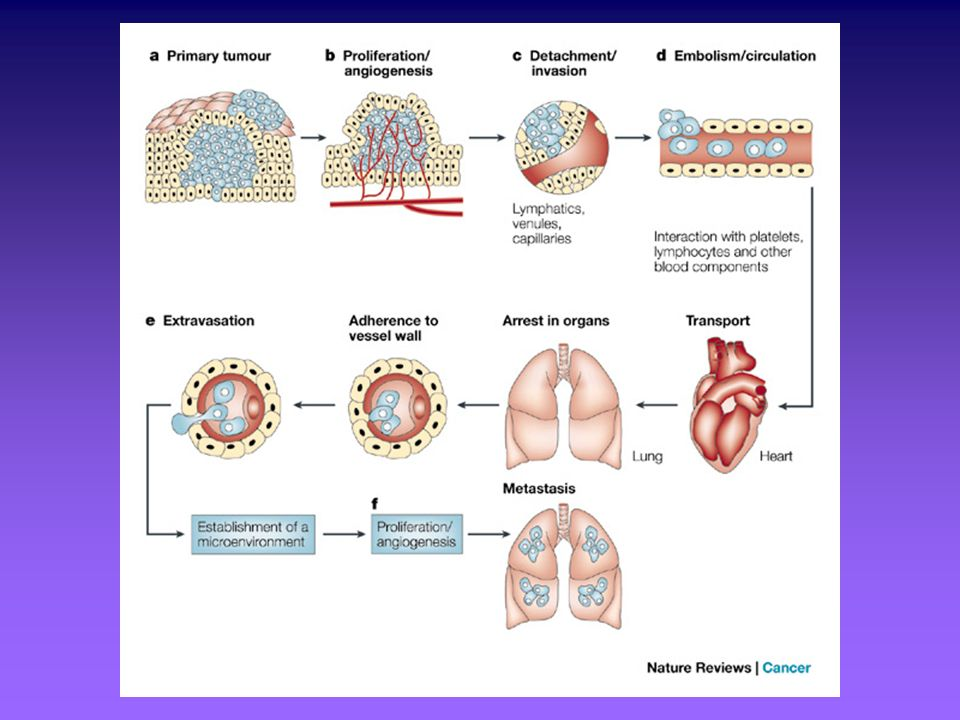 The main steps in the formation of a metastasis