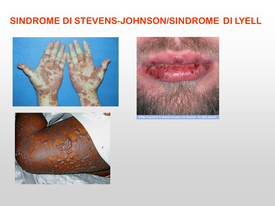 SINDROME DI STEVENS-JOHNSON/SINDROME DI LYELL