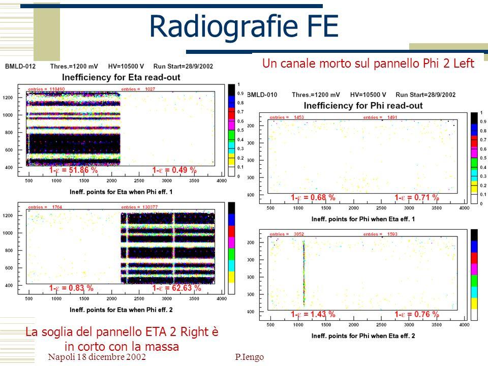 Radiografie FE Un canale morto sul pannello Phi 2 Left