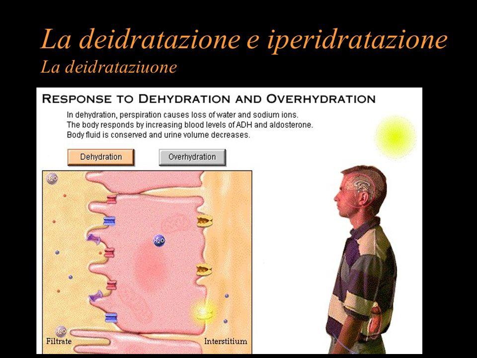 La deidratazione e iperidratazione La deidrataziuone