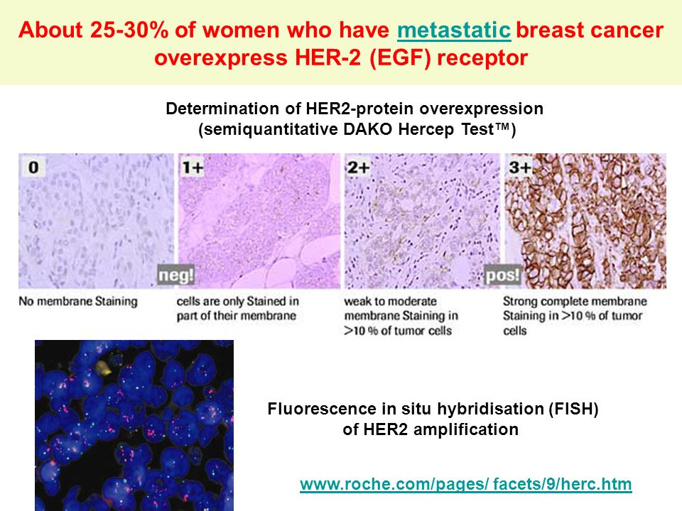 About 25-30% of women who have metastatic breast cancer overexpress HER-2 (EGF) receptor