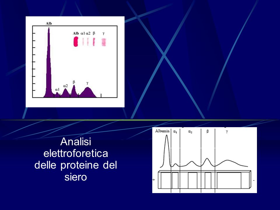Analisi elettroforetica delle proteine del siero