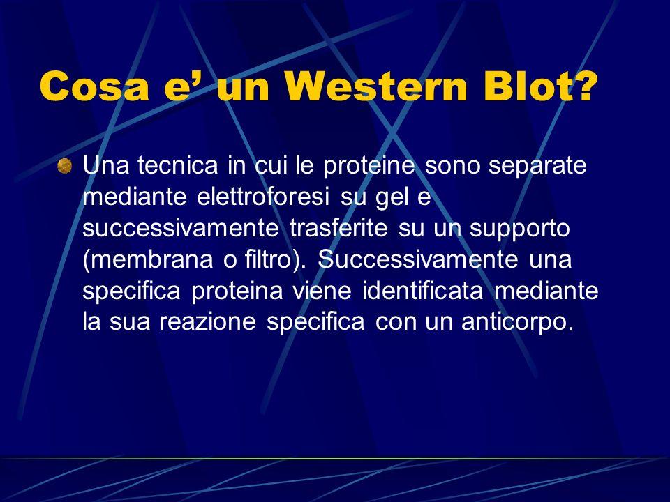 Cosa e' un Western Blot