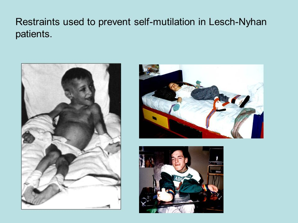 Restraints used to prevent self-mutilation in Lesch-Nyhan