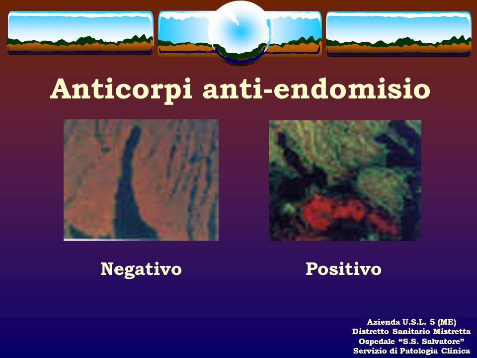 Anticorpi anti-endomisio