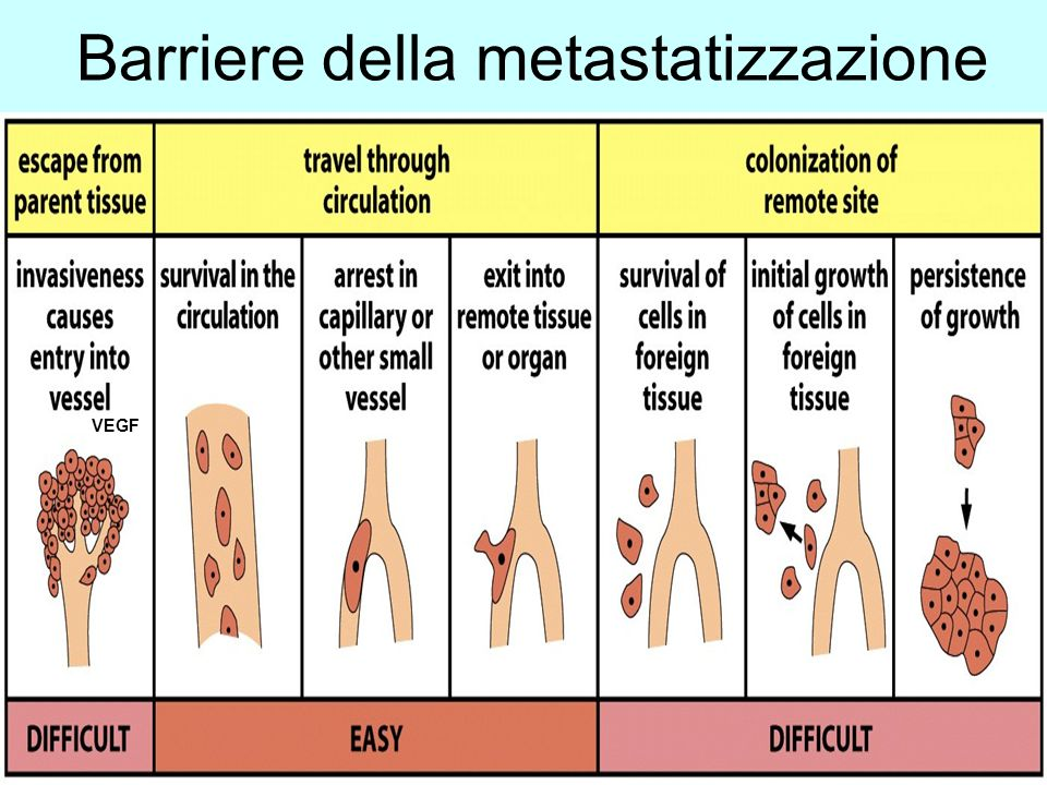 Barriere della metastatizzazione