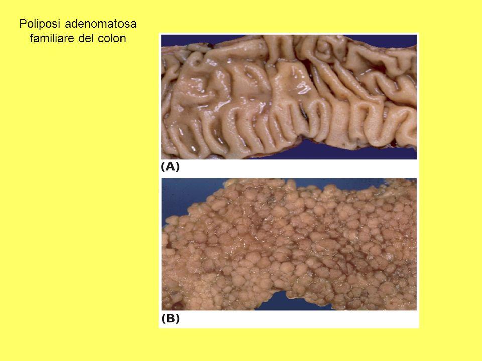 Poliposi adenomatosa familiare del colon