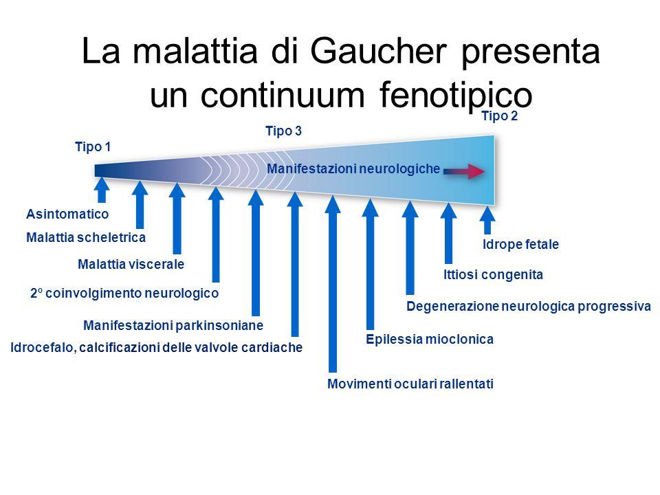 La malattia di Gaucher presenta un continuum fenotipico