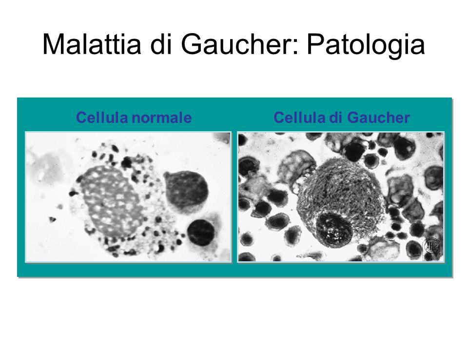Malattia di Gaucher: Patologia