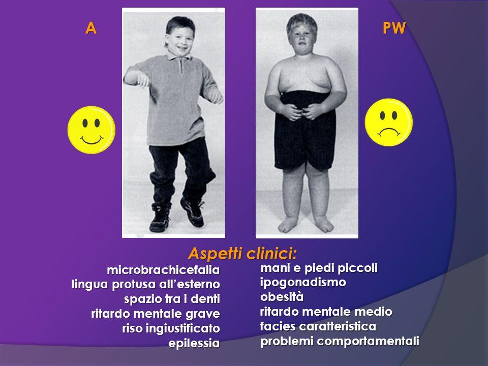 A PW Aspetti clinici: microbrachicefalia mani e piedi piccoli