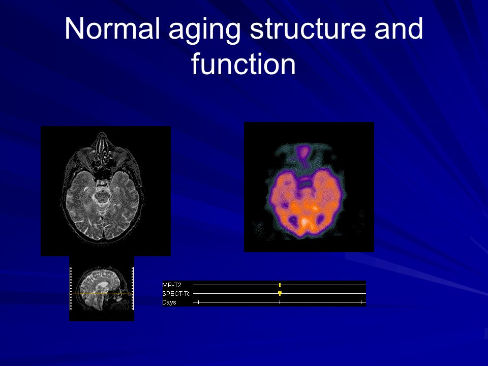 Normal aging structure and function