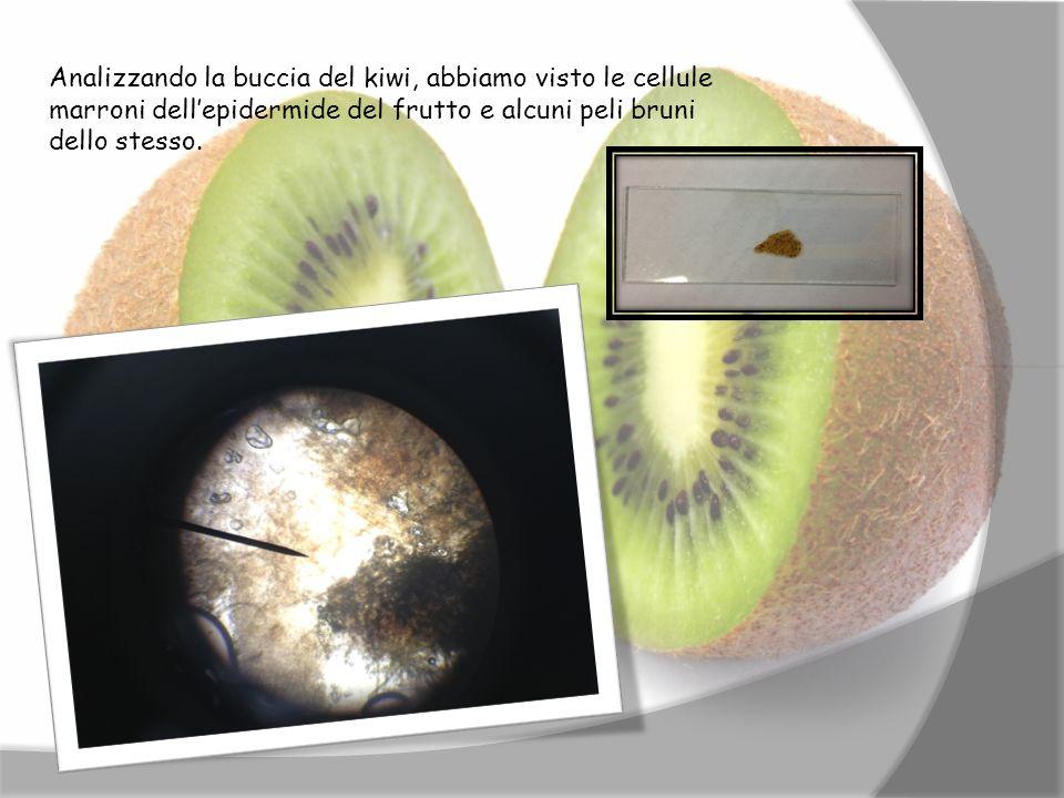 Analizzando la buccia del kiwi, abbiamo visto le cellule marroni dell'epidermide del frutto e alcuni peli bruni dello stesso.