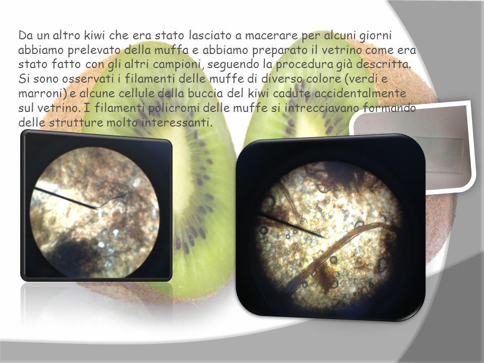 Da un altro kiwi che era stato lasciato a macerare per alcuni giorni abbiamo prelevato della muffa e abbiamo preparato il vetrino come era stato fatto con gli altri campioni, seguendo la procedura già descritta.