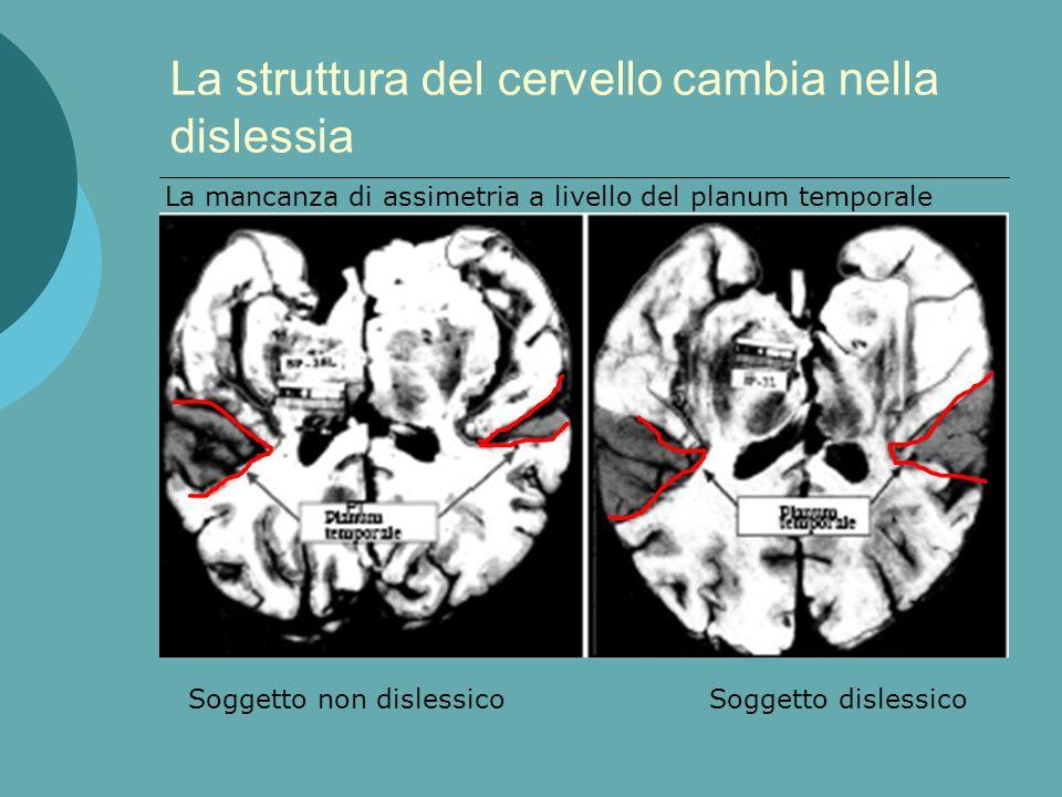 La struttura del cervello cambia nella dislessia