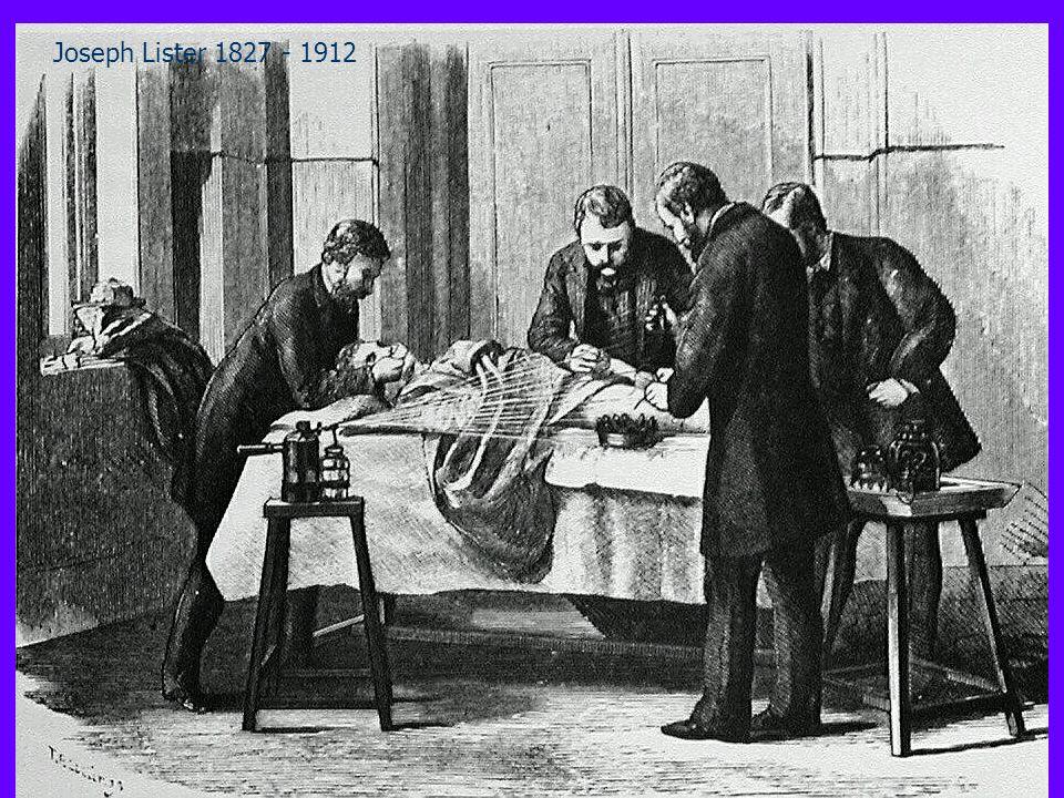 Joseph Lister 1827 - 1912 L'antisepsi