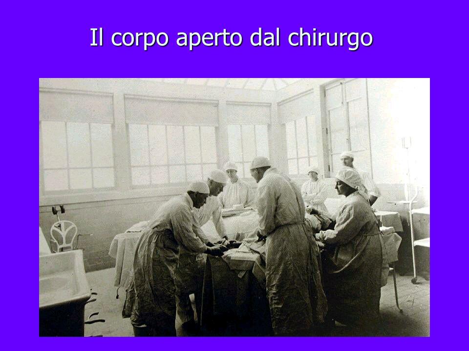 Il corpo aperto dal chirurgo