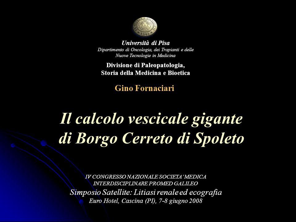 Il calcolo vescicale gigante di Borgo Cerreto di Spoleto