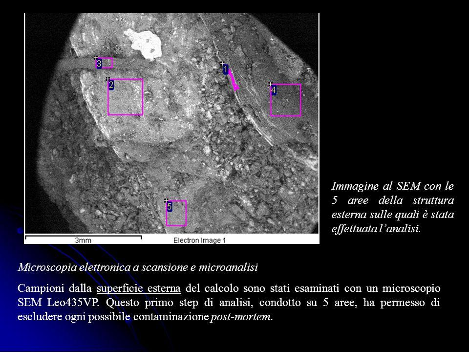 Immagine al SEM con le 5 aree della struttura esterna sulle quali è stata effettuata l'analisi.