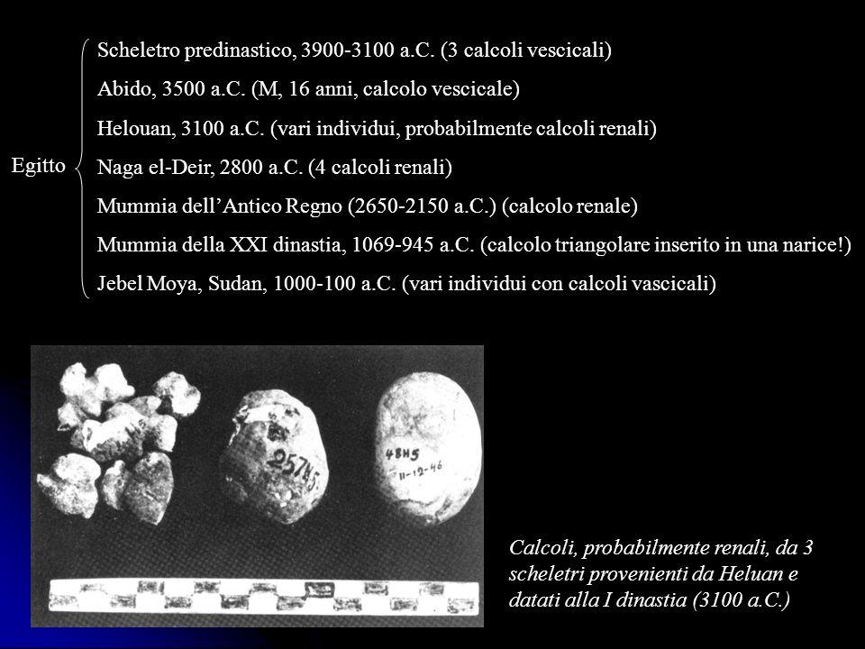 Scheletro predinastico, 3900-3100 a.C. (3 calcoli vescicali)