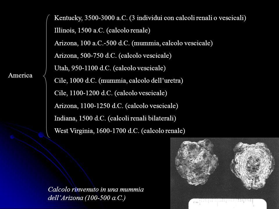 Kentucky, 3500-3000 a.C. (3 individui con calcoli renali o vescicali)