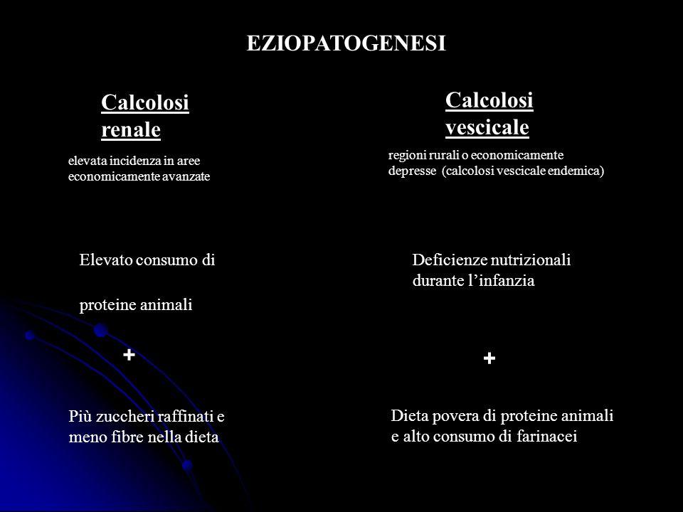 EZIOPATOGENESI Calcolosi vescicale Calcolosi renale + +