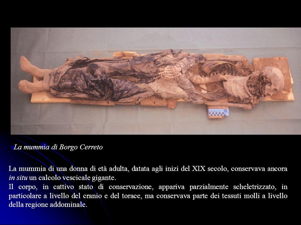 La mummia di Borgo Cerreto