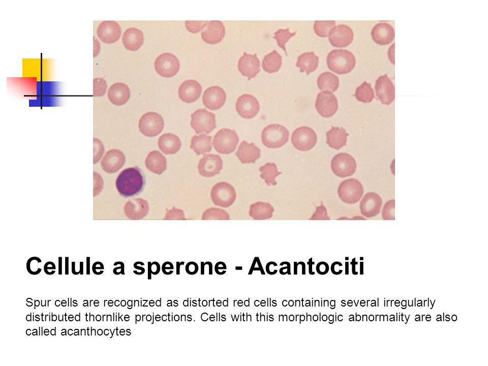 Cellule a sperone - Acantociti