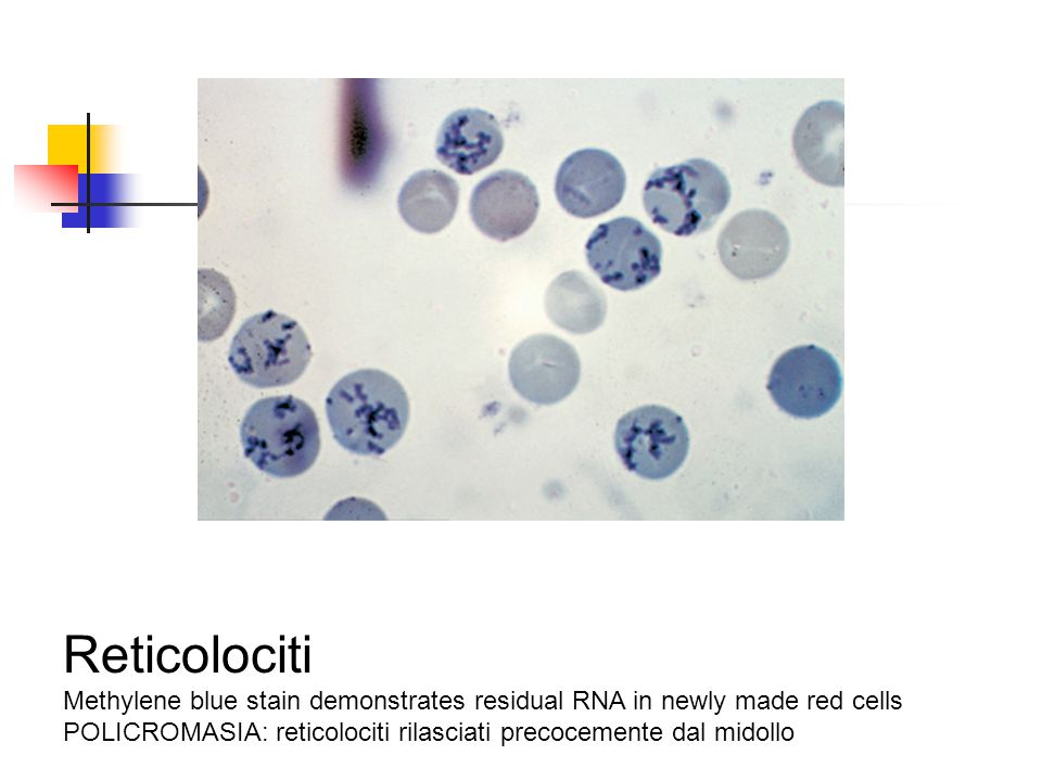 Reticolociti Methylene blue stain demonstrates residual RNA in newly made red cells.