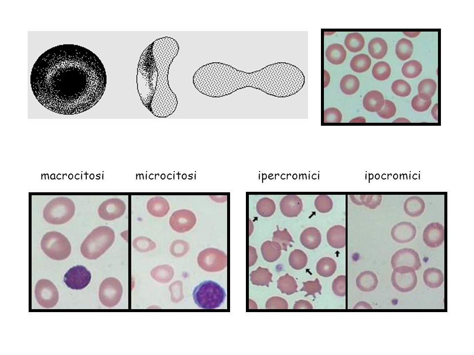 macrocitosi microcitosi ipercromici ipocromici