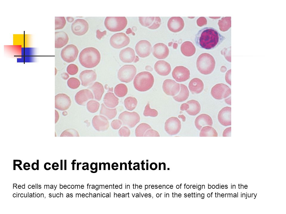 Red cell fragmentation.