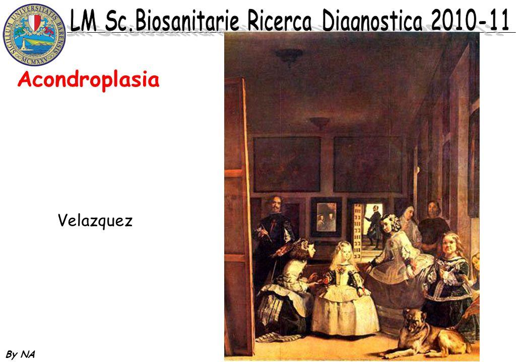 Acondroplasia Velazquez By NA