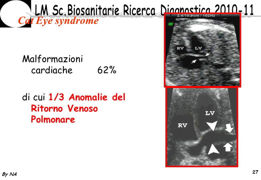 Cat Eye syndrome Malformazioni cardiache 62%