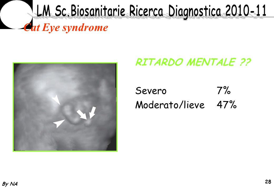 Cat Eye syndrome RITARDO MENTALE Severo 7% Moderato/lieve 47% By NA