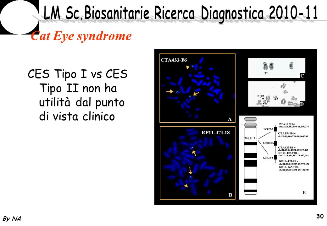 Cat Eye syndrome CES Tipo I vs CES Tipo II non ha utilità dal punto di vista clinico By NA