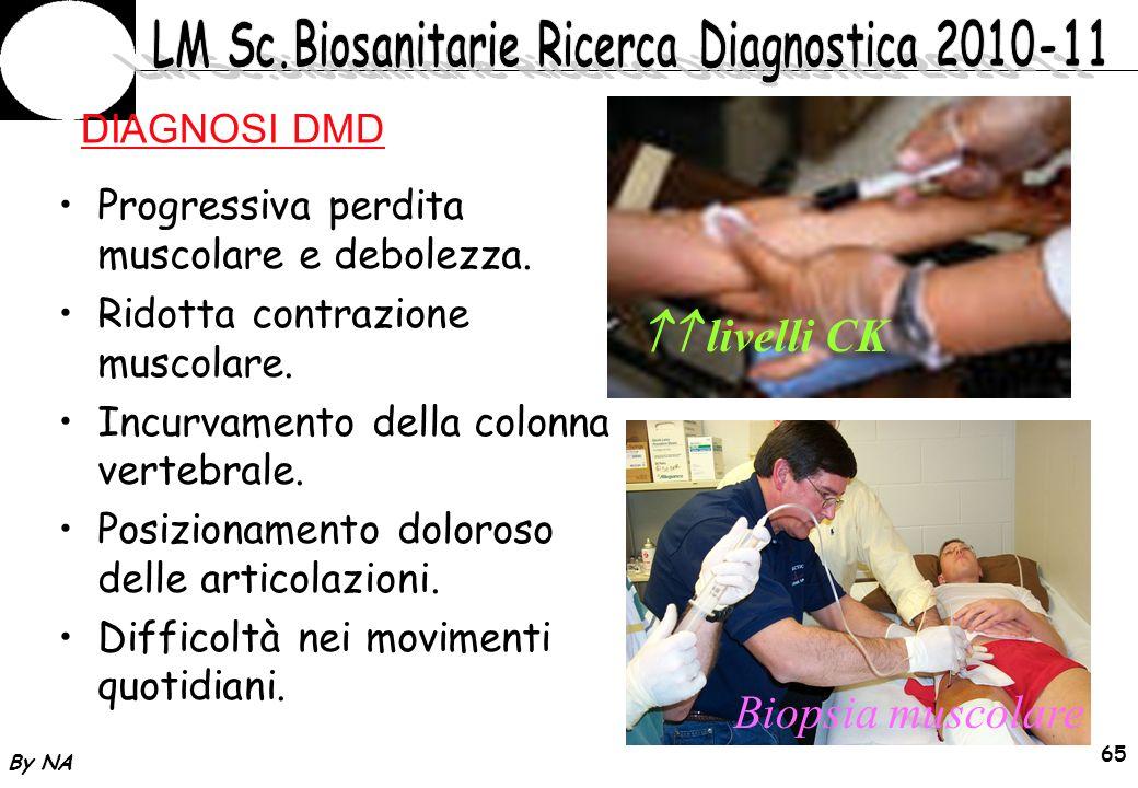  livelli CK Biopsia muscolare DIAGNOSI DMD