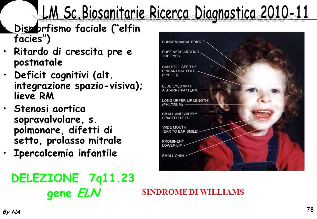 DELEZIONE 7q11.23 gene ELN Dismorfismo faciale ( elfin facies )