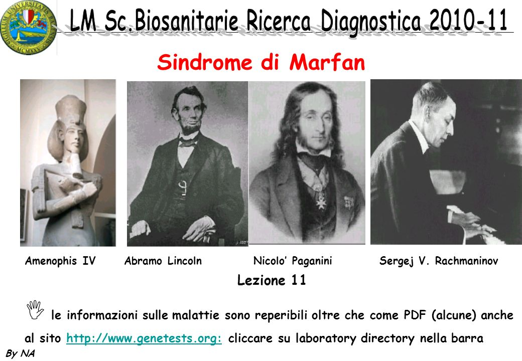 Sindrome di Marfan Lezione 11