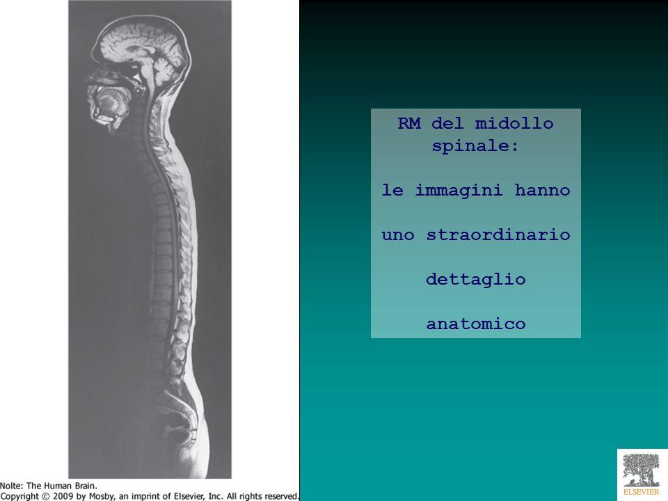 RM del midollo spinale: