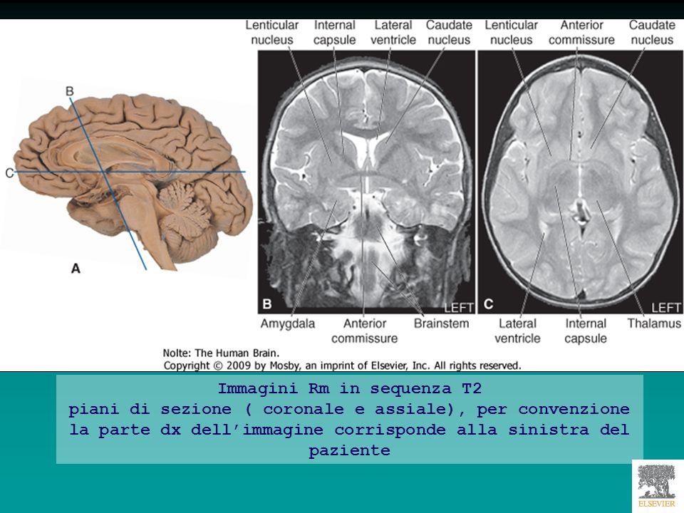 Immagini Rm in sequenza T2