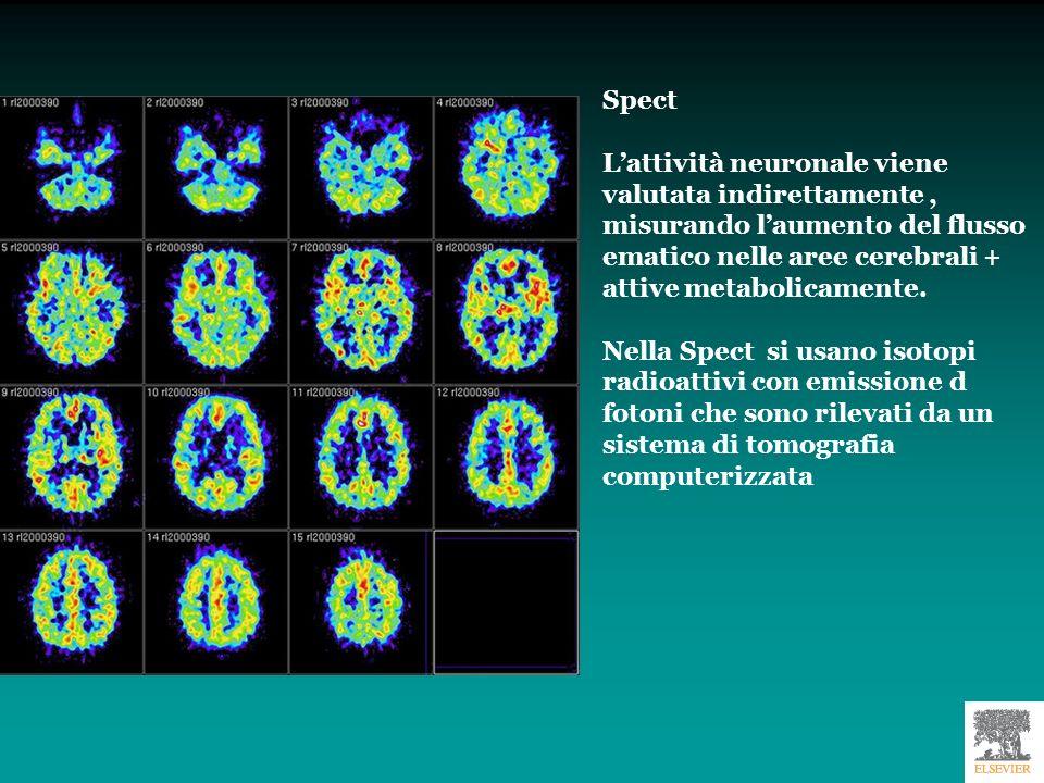 Spect L'attività neuronale viene valutata indirettamente , misurando l'aumento del flusso ematico nelle aree cerebrali + attive metabolicamente.