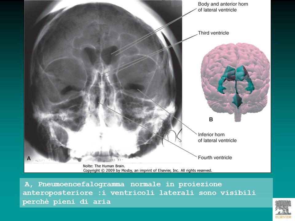 A, Pneumoencefalogramma normale in proiezione anteroposteriore :i ventricoli laterali sono visibili perchè pieni di aria