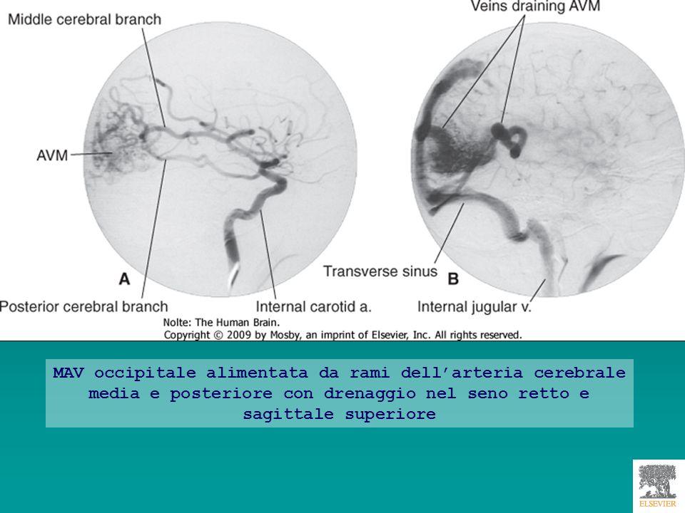 MAV occipitale alimentata da rami dell'arteria cerebrale media e posteriore con drenaggio nel seno retto e sagittale superiore