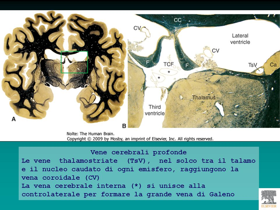 Vene cerebrali profonde