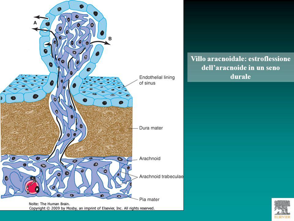 Villo aracnoidale: estroflessione dell'aracnoide in un seno durale
