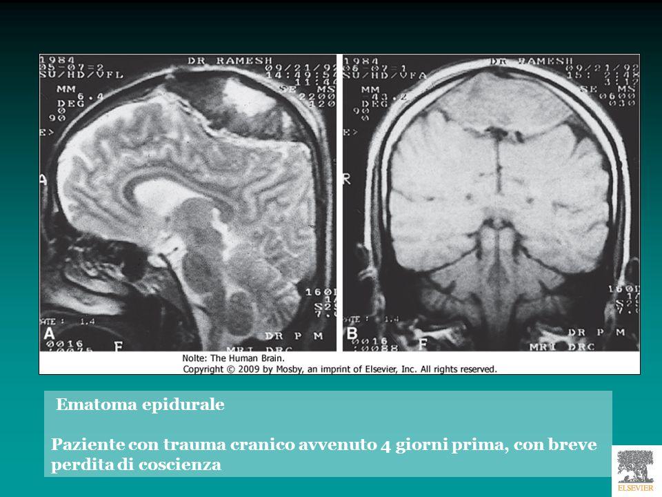 Ematoma epidurale Paziente con trauma cranico avvenuto 4 giorni prima, con breve perdita di coscienza.
